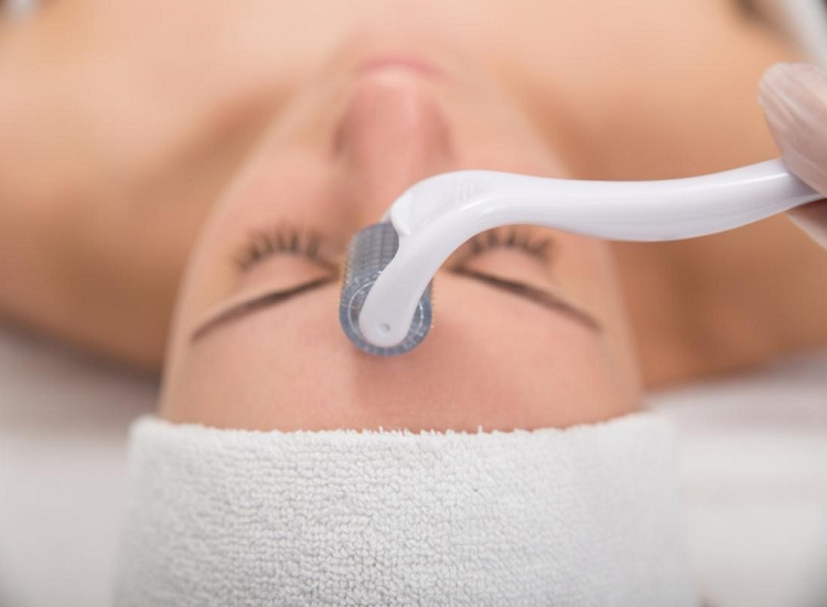 How Microneedling Can Benefit Your Skin
